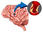 udaru-mozgu